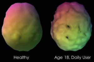 تاثیر گل بر روی مغز